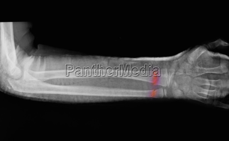 x ray of forearm fracture of