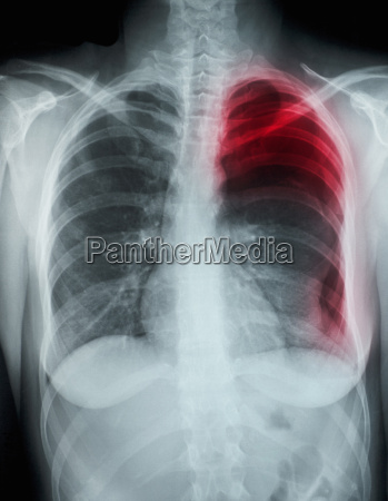 chest x ray showing pneumothorax