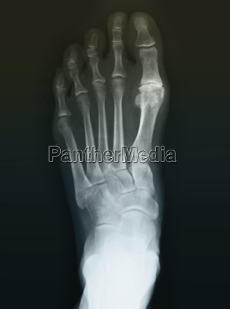 normal foot x ray of a
