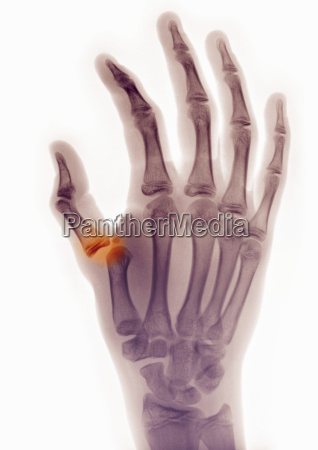 x ray of hand showing thumb
