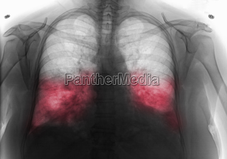 chest x ray showing bilateral pneumonia
