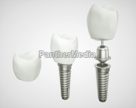 tooth implant disassembled 3d rendering