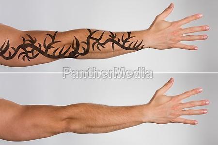 laser tattooentfernung vor und nach