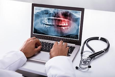 zahnarzt der auf laptop mit zahnmedizinischem