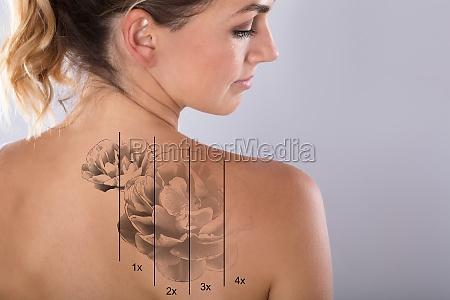 laser tattoo entfernung auf der schulter