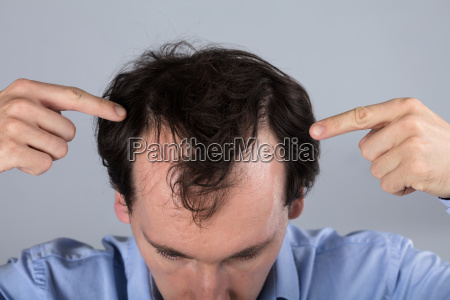 mann mit haarausfall symptome