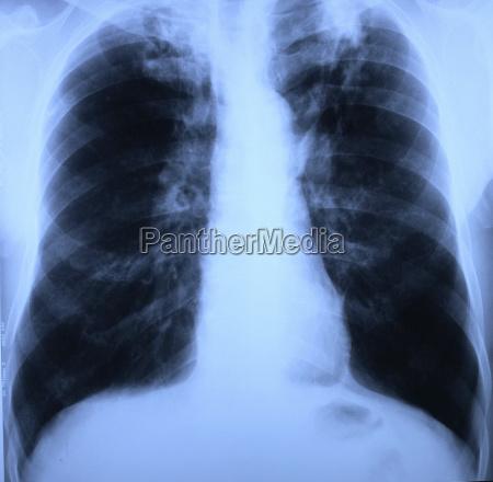 rontgenbild von lungen und brustkorb mit