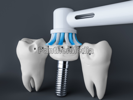 tooth human cartoon implant 3d rendering