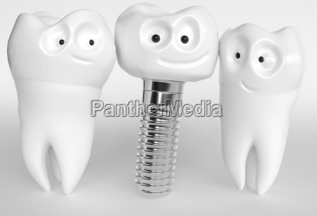 tooth human cartoon implant 3d