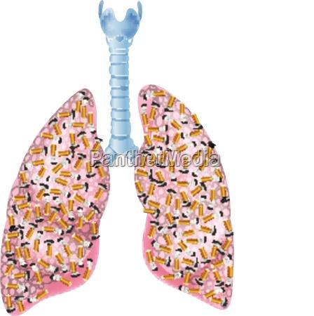 illustration von raucher lungen