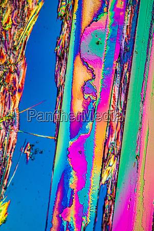 harnkristalle stark im polarisierten licht vergroessert