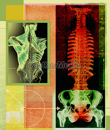 x ray of inflamed spine and