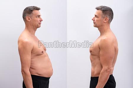 mann vor und nach dem fettverlust