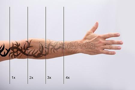 laser tattoo entfernung auf der hand