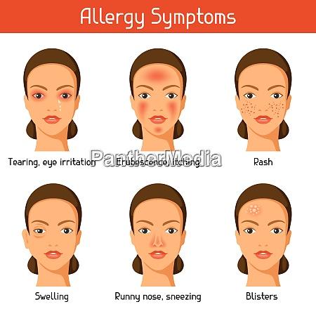 allergiesymptome vektor illustration fuer medizinische websites