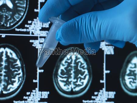 pharmazeutische forschung zu hirnerkrankungen wie demenz