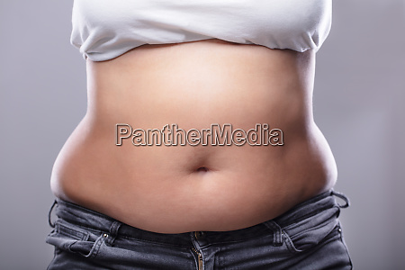 woman with excessive belly fat