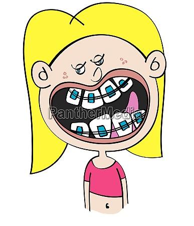 lustige weisse maedchen mit zahnspangen cartoon