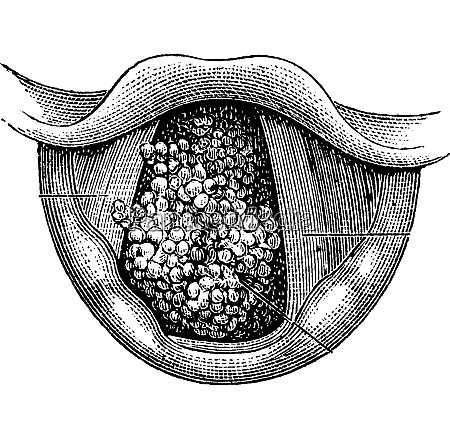 papilloma des larynx vintage gravur