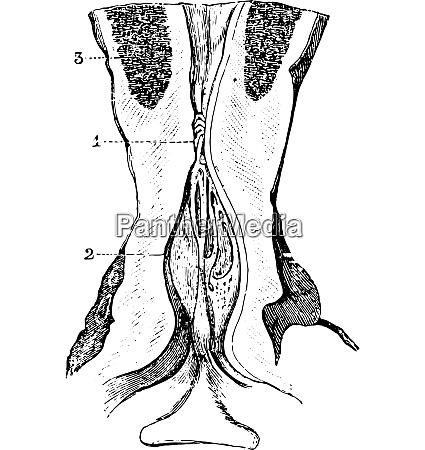 verengung des membranoesen bereichs der harnroehre