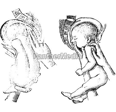 abb 1253 loeschen des erhobenen arms