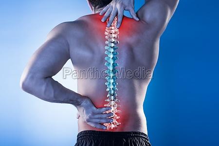 mann leidet unter rueckenschmerzen