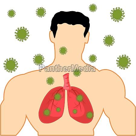 koerpermaenner mit leicht infiziertem coronavirus covid