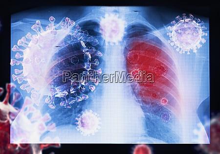 coronavirus krankheit covid 19 virusinfektion in