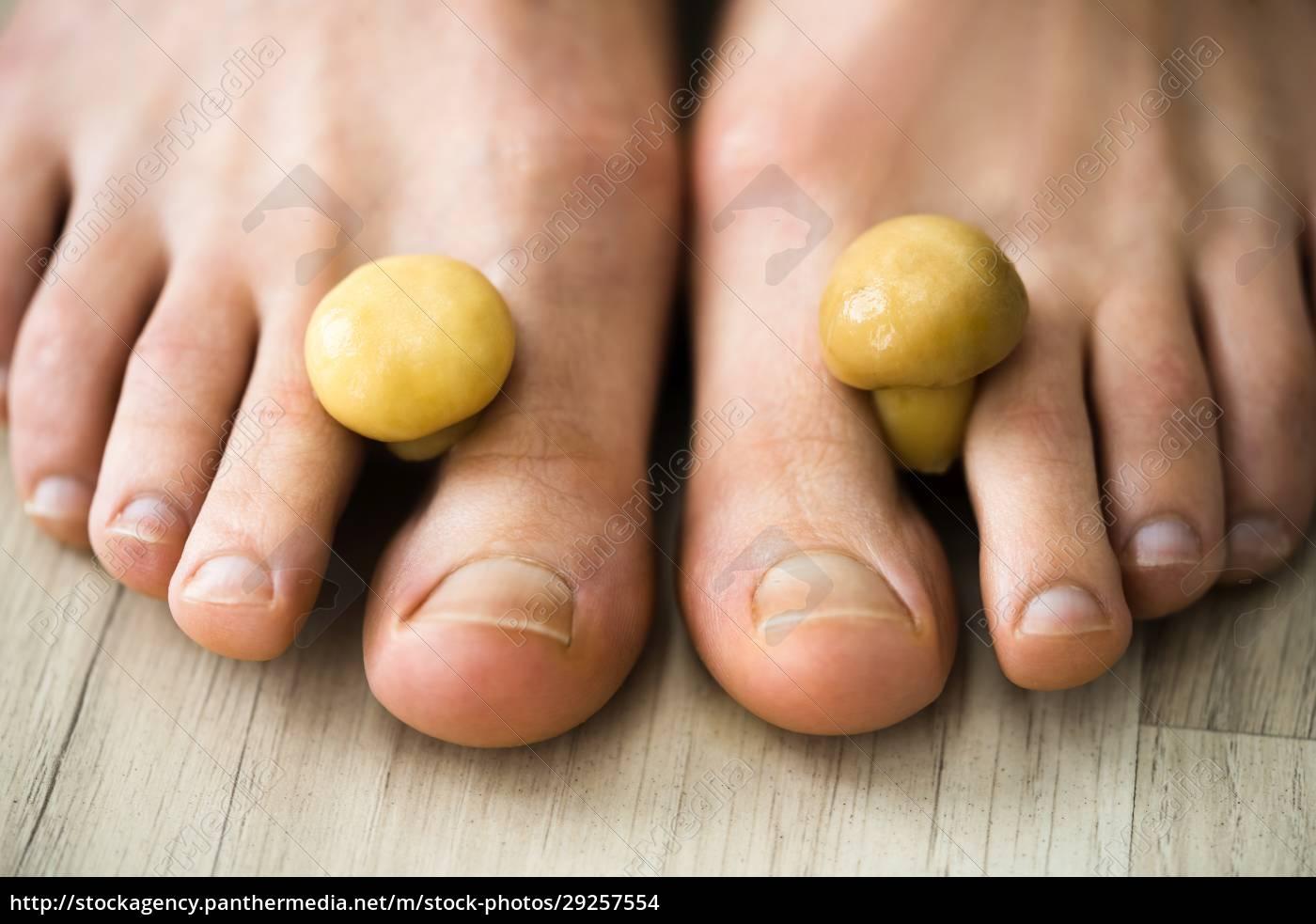 pilz, pilz, zwischen, zehennagel., smelly, feet - 29257554